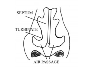 Nasal Congestion Diagram